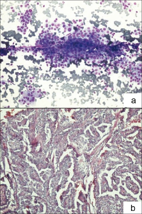 Figure 1: Photomicrograph of papillary carcinoma thyroid: (a) FNAC smears showing sheets and papillary tissue fragments. (MGG, × 200). (b) Histopathology section showing papillary architecture of tumor cells. (H and E, × 100)