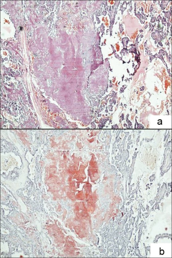 Figure 4: Photomicrograph of medullary carcinoma thyroid: (a) Histopathology section showing extracellular, dense, amorphous, pinkish amyloid material. (H and E, × 400). (b) Histopathology section showing amyloid staining red with Congo red stain. (Congo Red, × 400)