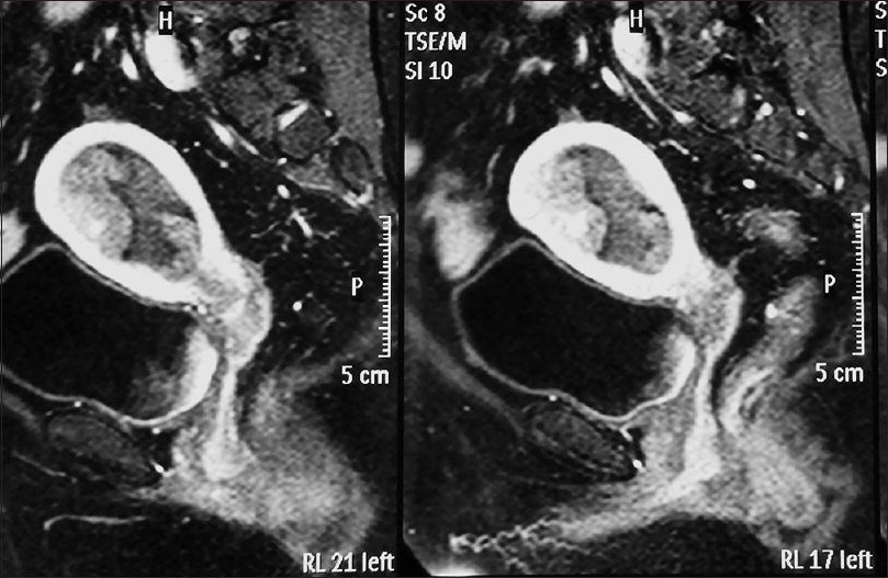 Uterine cancer on mri. Hpv positive oropharyngeal cancer Endometrial cancer on mri